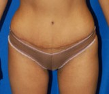 After - Tummy Tuck - 2036