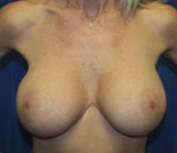 After - Breast Revision - 2039