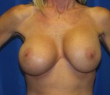 Before - Breast Revision - 2039