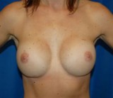 After - Breast Revision - 2040