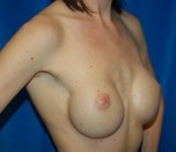 Before - Breast Revision - 2040