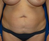 Before - Tummy Tuck - 2046