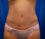 After - Tummy Tuck - 2048