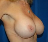 After - Breast Revision - 2041
