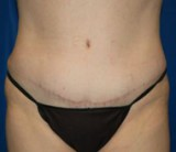 After - Tummy Tuck - 2049